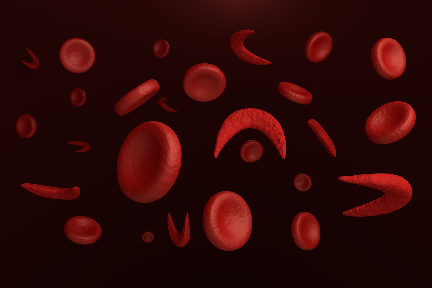 How is Sickle Cell Disease diagnosed? – Sickle Cell DNA