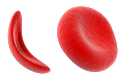 About the Sickle Cell Disease DNA Test